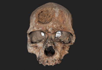 Cro Magon 1 - Homo sapiens 3D - AST-RX © UMS 2700